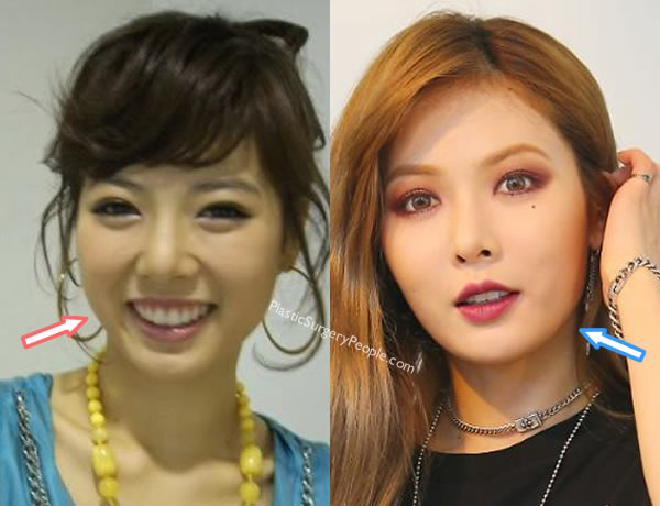 Hyuna face jawline