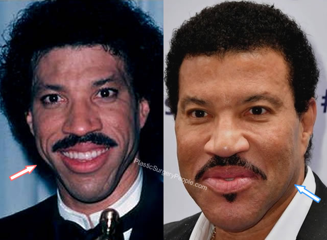 Lionel Richie Botox Before and After