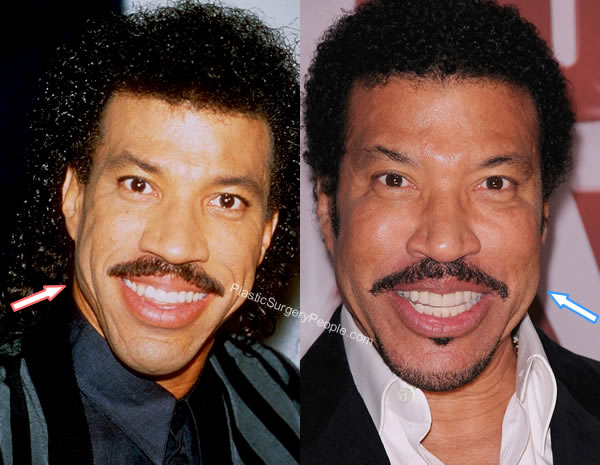 Lionel Richie Facelift Before and After