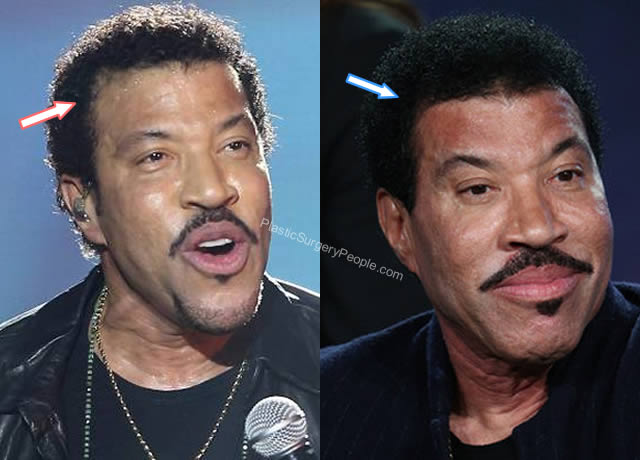 Lionel Richie Hair Transplant Before and After