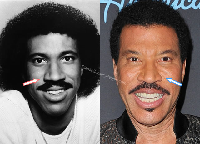 Lionel Richie Nose Job Before and After