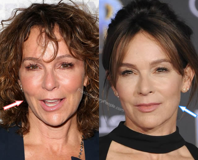 Does Jennifer Grey have botox injections?