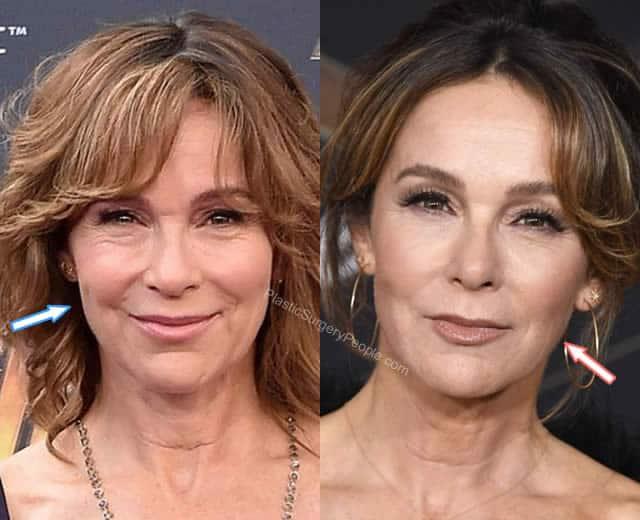 Has Jennifer Grey had a facelift?