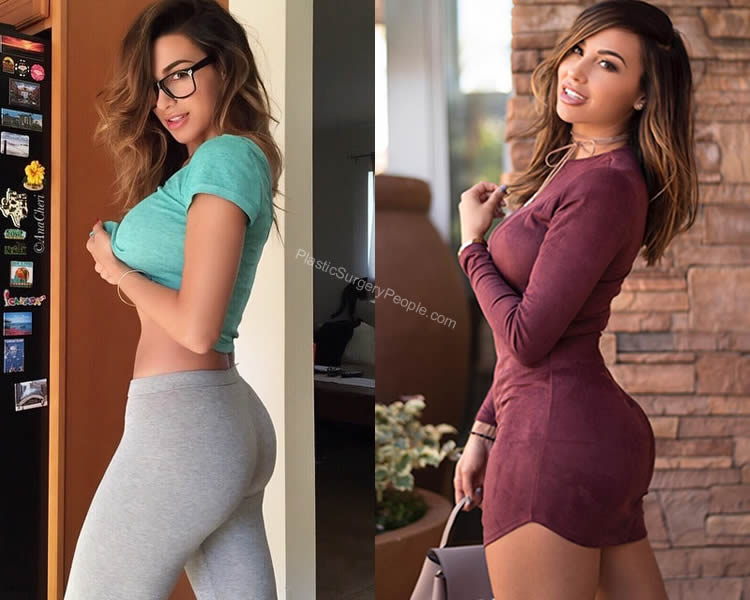 Ana Cheri butt augmentation before and after