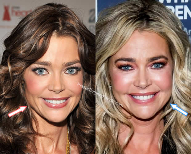 Denise Richards botox before and after