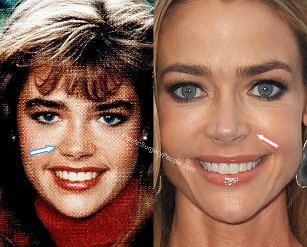 Denise Richards nose job before and after