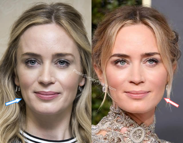 Emily Blunt botox injections Before and After