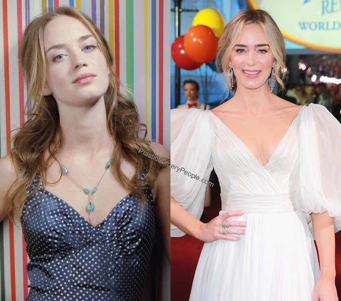Emily Blunt breast implants Before and After