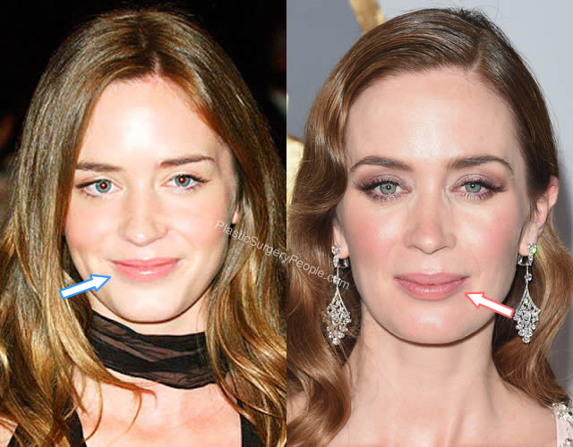 Emily Blunt lip fillers before and after