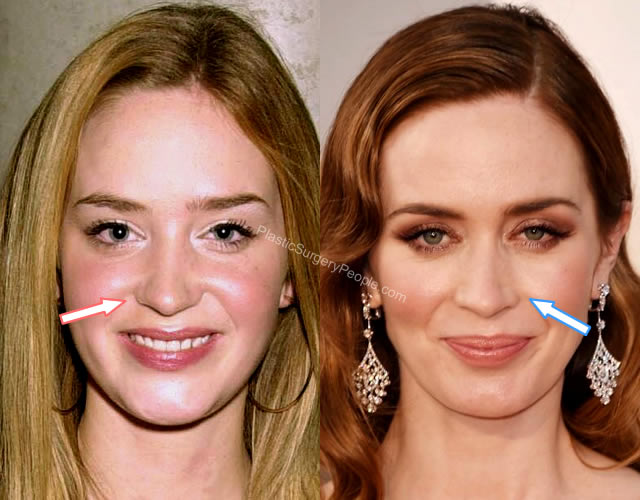 Emily Blunt nose job Before and After