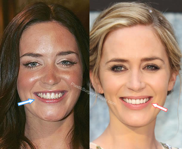 Emily Blunt's teeth before and after