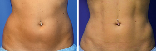 Female patient ab etching before and after