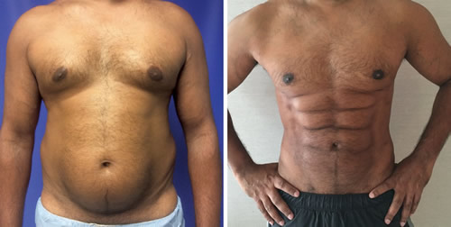 Male patient abdominal etching before and after