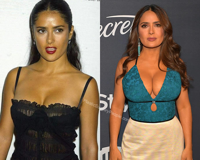 Has Salma Hayek had a boob job?