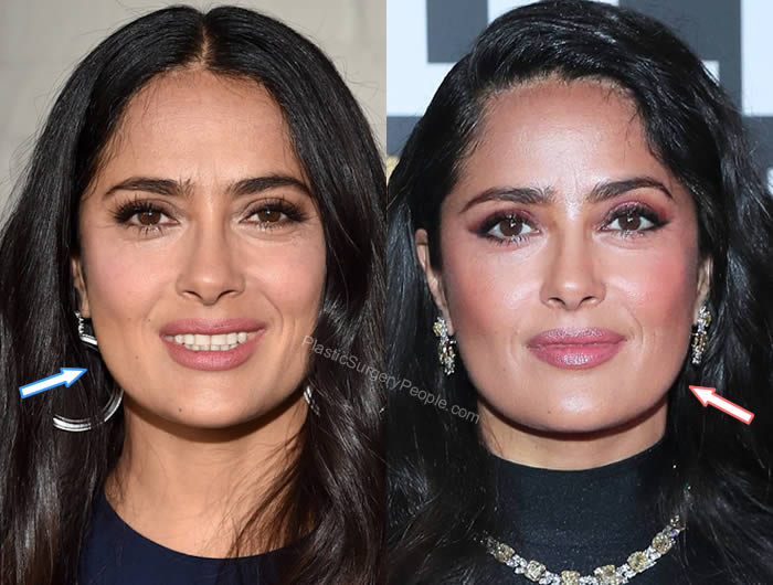 Salma Hayek botox and facelift - Before and After