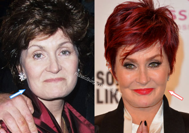Sharon Osbourne botox before and after