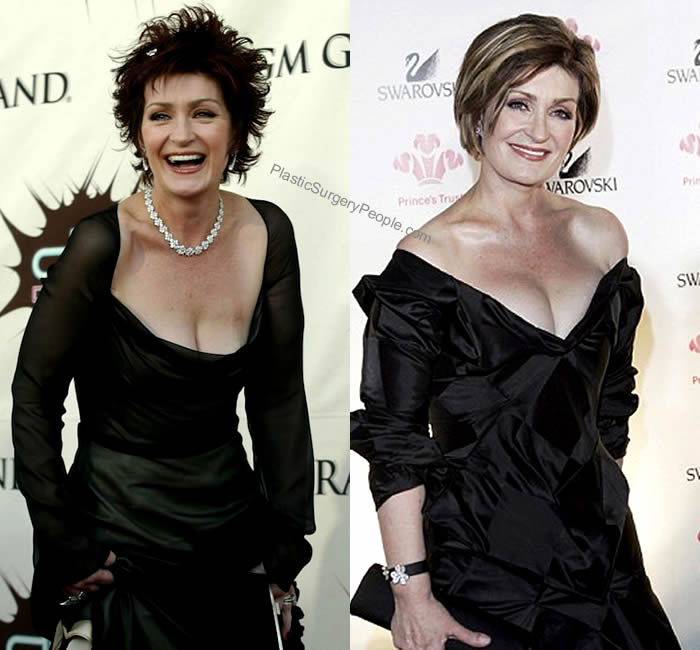Sharon Osbourne breast implants before and after
