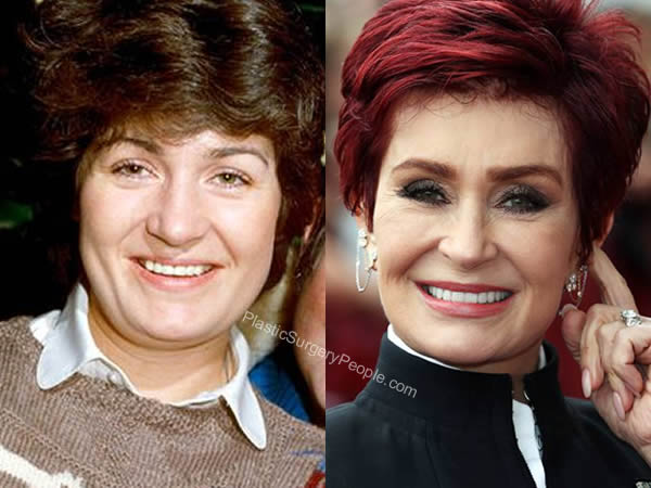 Sharon Osbourne's face before and after