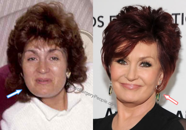 Sharon Osbourne facelift before and after