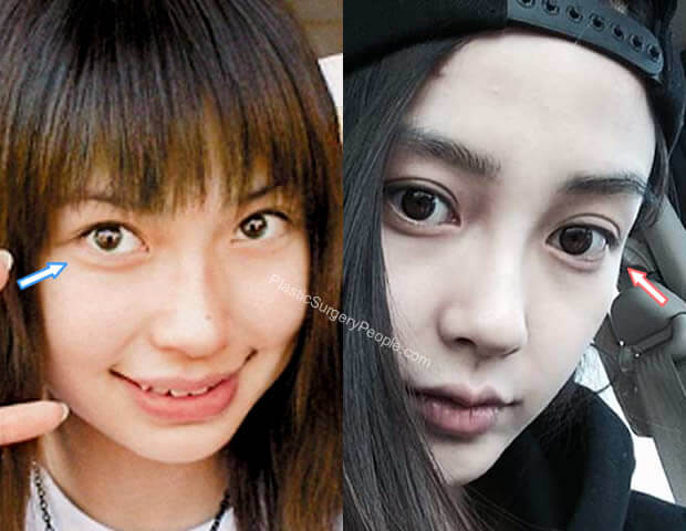 Angelababy Eye Surgery Before and After