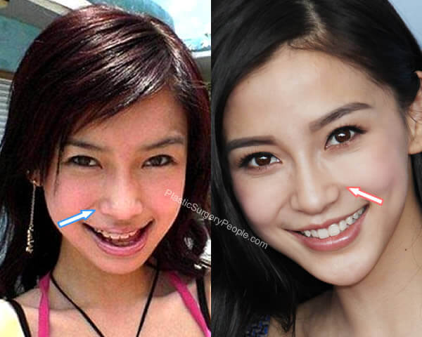 Angelababy Nose Job Before and After