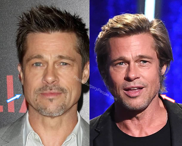Brad Pitt botox and facelift: Before and After