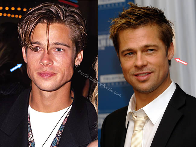 Brad Pitt ears before and after