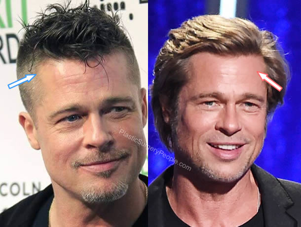 Brad Pitt hair transplant before and after