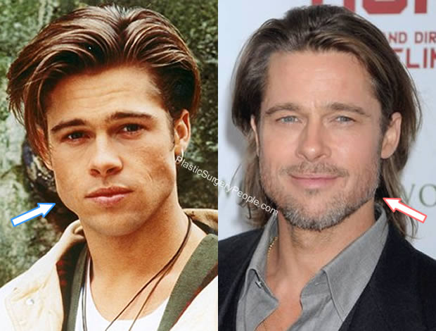 Brad Pitt jaw before and after