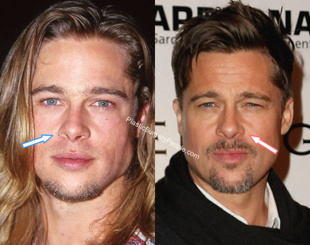 Brad Pitt nose job before and after