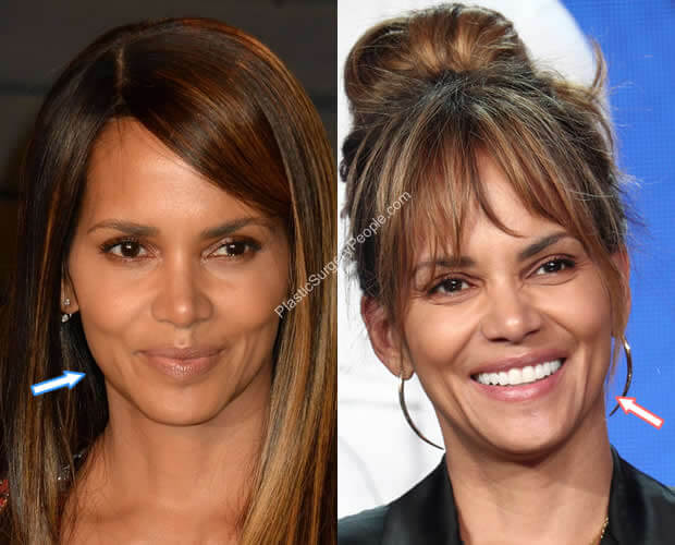 Halle Berry Botox Before and After