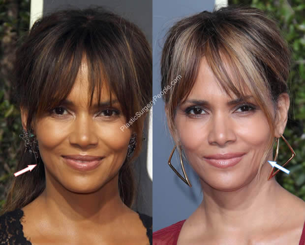 Halle Berry Facelift Before and After