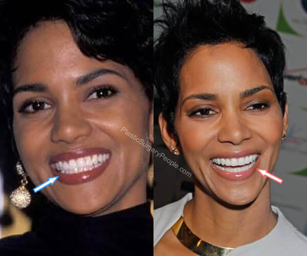 Halle Berry Teeth Before and After