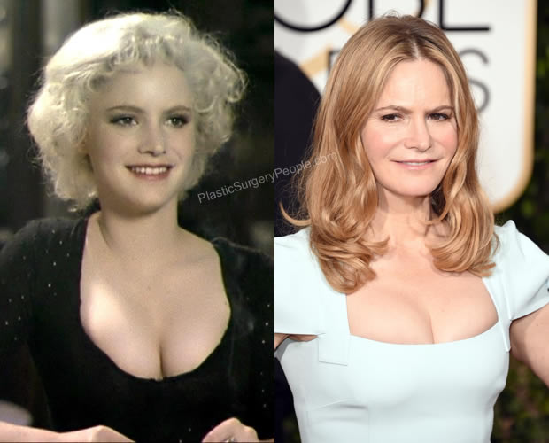 Jennifer Jason Leigh boob job before and after