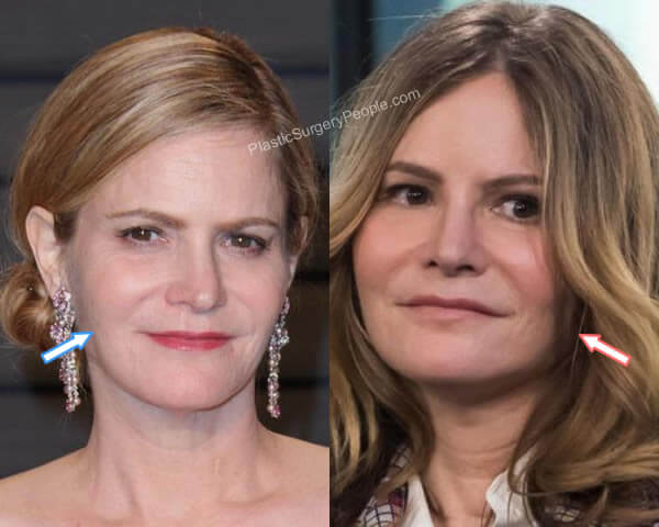 Jennifer Jason Leigh botox before and after