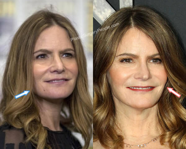 Jennifer Jason Leigh facelift before and after