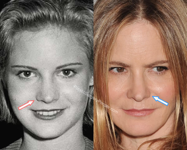 Jennifer Jason Leigh nose job before and after