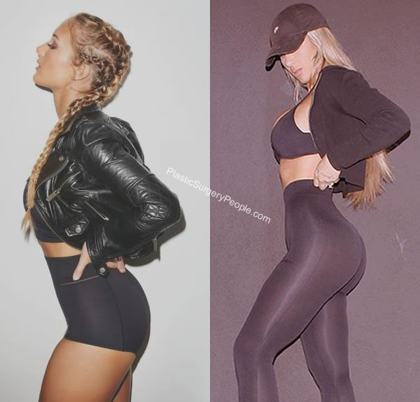 Did Niykee Heaton get a butt lift?