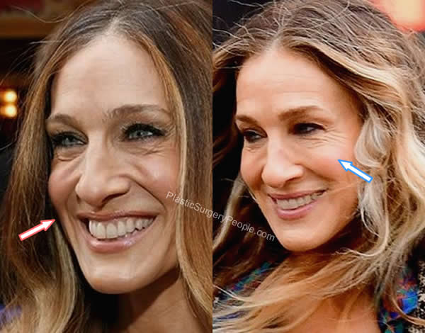 Sarah Jessica Parker botox before and after