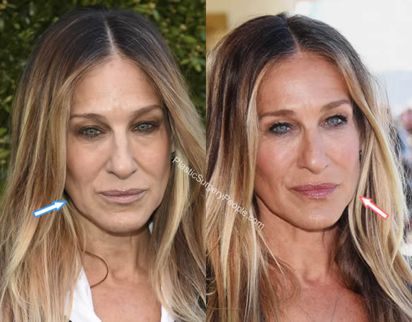 Sarah Jessica Parker facelift before and after