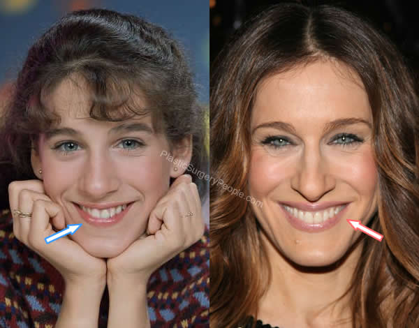 Sarah Jessica Parker teeth before and after