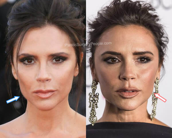 Victoria Beckham Botox Before and After