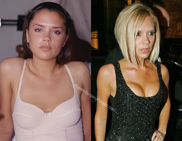 Victoria Beckham Breast Implants Before and After