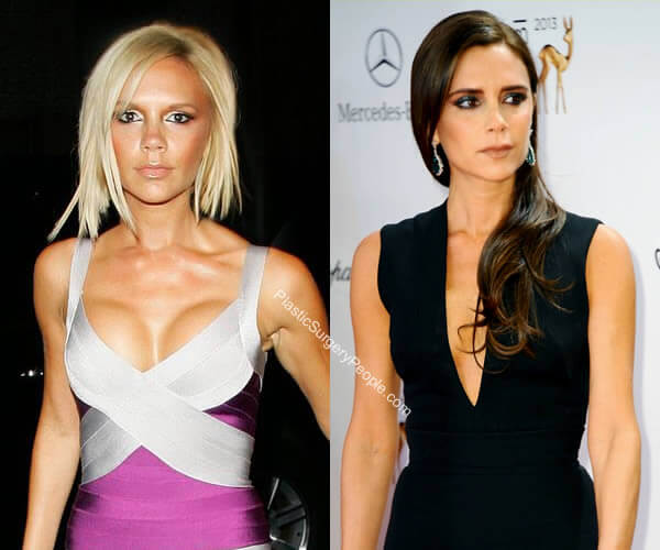 Victoria Beckham Breast Reduction Before and After