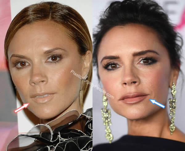 Victoria Beckham Lip Fillers Before and After