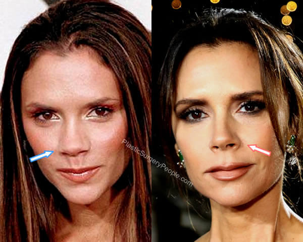 Victoria Beckham Nose Job Before and After