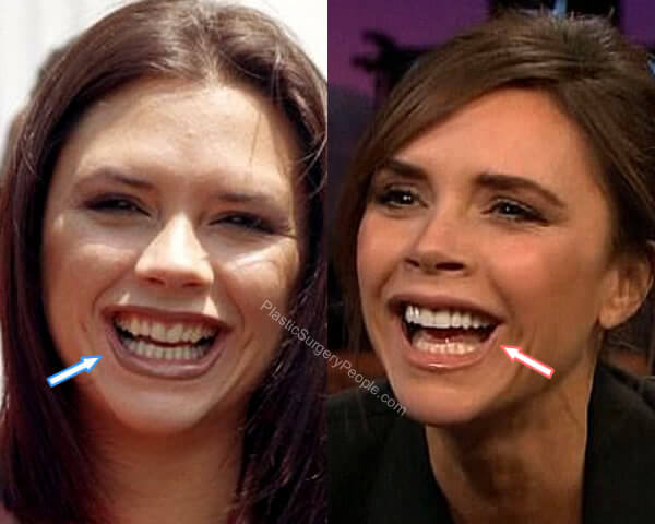 Victoria Beckham Teeth Before and After