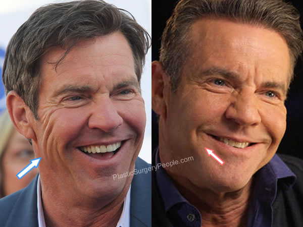 Did Dennis Quaid have botox?