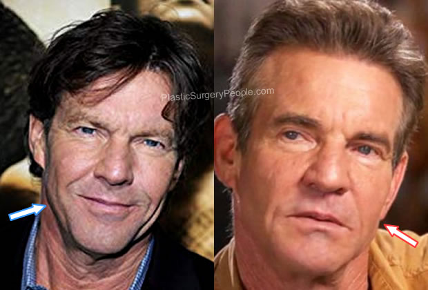 Has Dennis Quaid had a facelift?