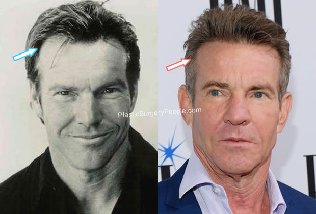Did Dennis Quaid get hair transplant?
